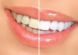 Teeth whitening results with before and after picture